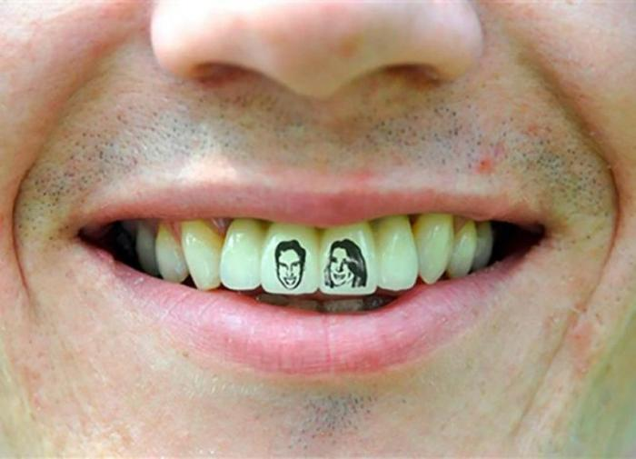 Картинки на зубах